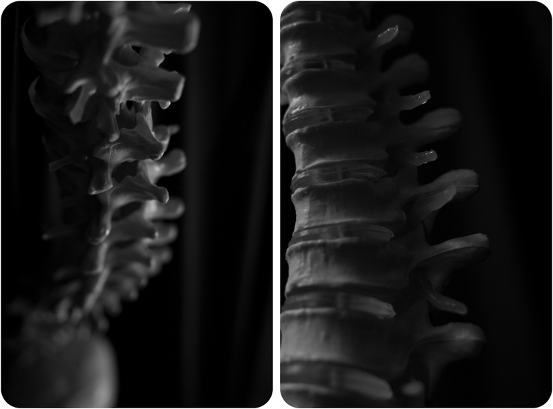 Jo Arellanes | Atlanta Photographer | Chiropractic Care | Spines